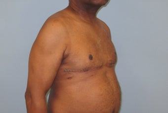 56 year old male with male breast enlargement after 1491689