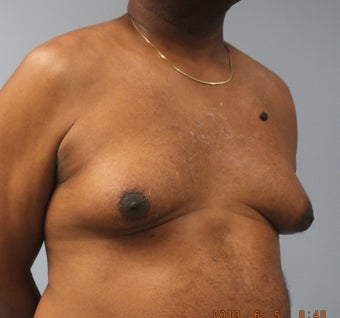 56 year old male with male breast enlargement before 1491689
