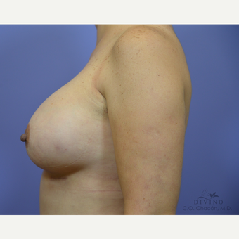 45-54 year old woman treated with Breast Augmentation after 3329317