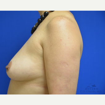 45-54 year old woman treated with Breast Augmentation before 3329317