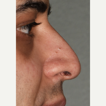 35-44 year old man treated with Rhinoplasty before 3826744