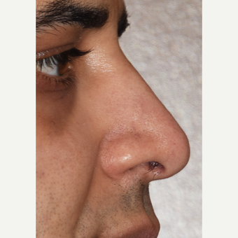35-44 year old man treated with Rhinoplasty after 3826744