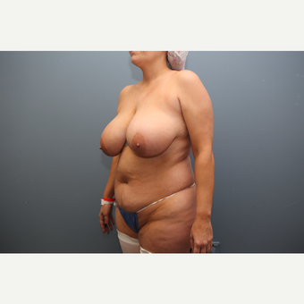 35-44 year old woman treated with Mommy Makeover before 3470248
