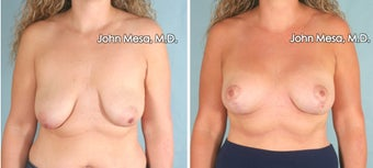 Breast Lift (Mastopexy) before 1413853