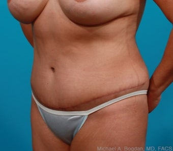 44 year old woman treated with Tummy Tuck after 2144483