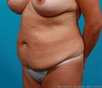 44 year old woman treated with Tummy Tuck before 2144483