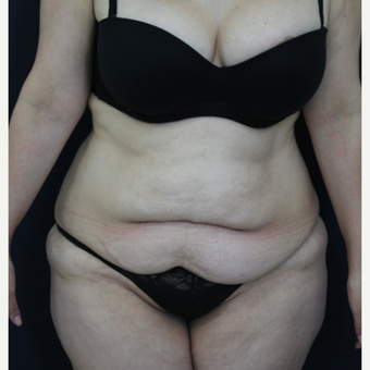 30 year old woman treated with Tummy Tuck before 2215886