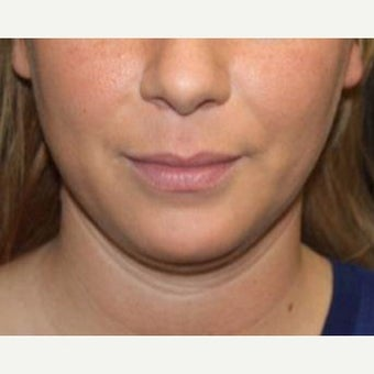 25-34 year old woman treated with Kybella before 2526629