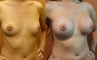 Breast Implants before 974264
