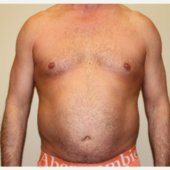 45-54 year old man treated with Liposuction before 3215413