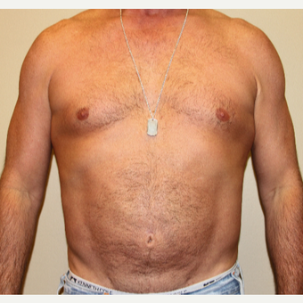 45-54 year old man treated with Liposuction after 3215413