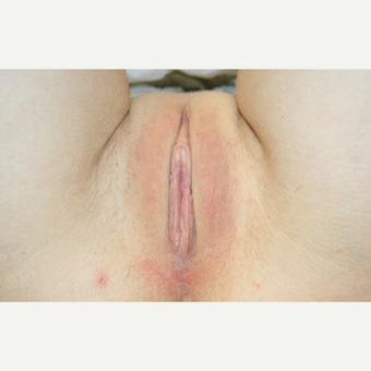 25-34 year old woman treated with Labiaplasty after 3486277