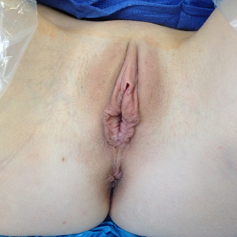 25-34 year old woman treated with Labiaplasty before 3486277