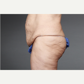 45-54 year old woman treated with Panniculectomy before 3046754