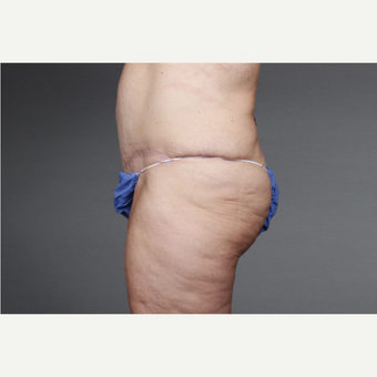 45-54 year old woman treated with Panniculectomy after 3046754