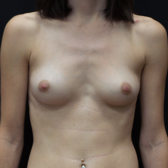 Breast Augmentation before 3012448