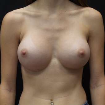 Breast Augmentation after 3012448