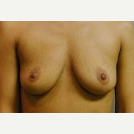 25-34 year old woman treated with Breast Implants before 3109007