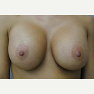 25-34 year old woman treated with Breast Implants after 3109007