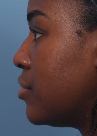 18-24 year old woman treated with Rhinoplasty before 2106912