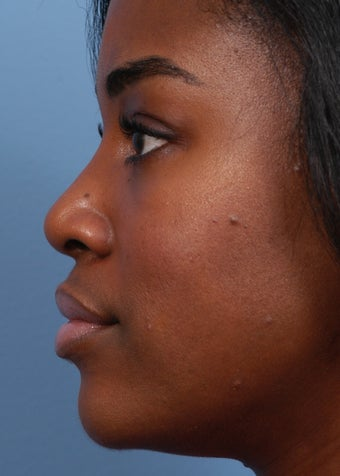 18-24 year old woman treated with Rhinoplasty after 2106912