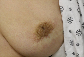 Inverted Nipple Repair before 1078199