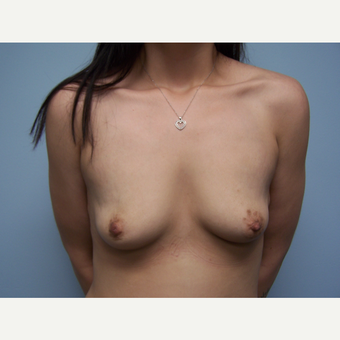18-24 year old woman treated with Breast Augmentation before 3412697