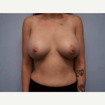18-24 year old woman treated with Breast Augmentation after 3412697