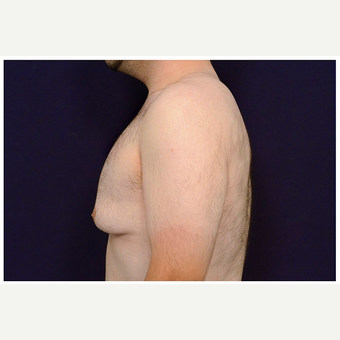 18-24 year old man treated with Male Breast Reduction before 3536546