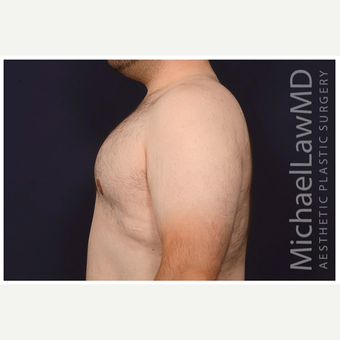 18-24 year old man treated with Male Breast Reduction after 3536546