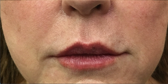 66 year old woman treated with 1 mL of Restylane Silk to the upper and lower lips after 3129576