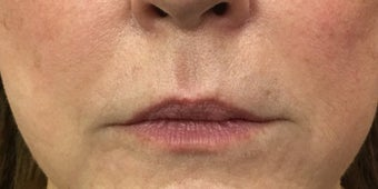 66 year old woman treated with 1 mL of Restylane Silk to the upper and lower lips before 3129576