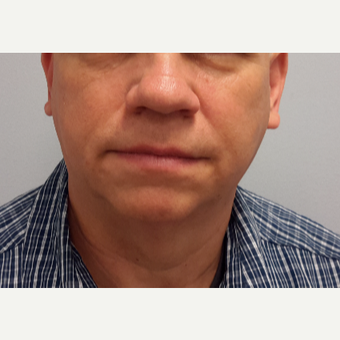 55-64 year old man treated with Ultherapy before 3205449