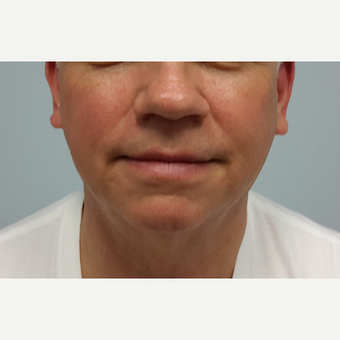 55-64 year old man treated with Ultherapy after 3205449