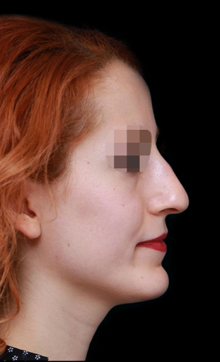 25-34 year old woman treated with Rhinoplasty before 3199851
