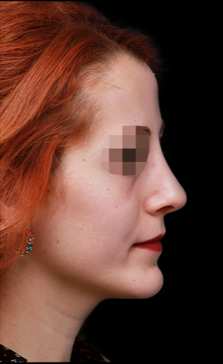 25-34 year old woman treated with Rhinoplasty after 3199851