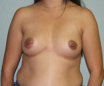 18-24 year old woman treated with Breast Augmentation before 2452154