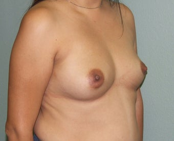 18-24 year old woman treated with Breast Augmentation 2452154