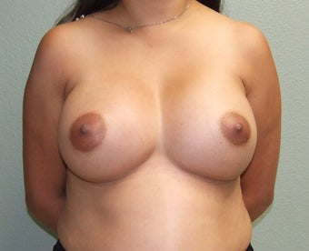 18-24 year old woman treated with Breast Augmentation after 2452154