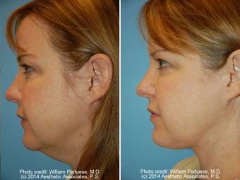 Neck Liposuction before 1389491