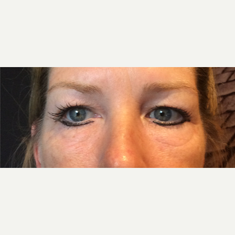 45-54 year old woman treated with Ultherapy after 3460451