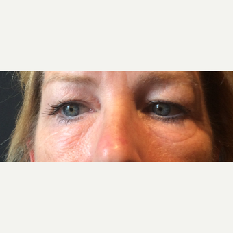 45-54 year old woman treated with Ultherapy before 3460451