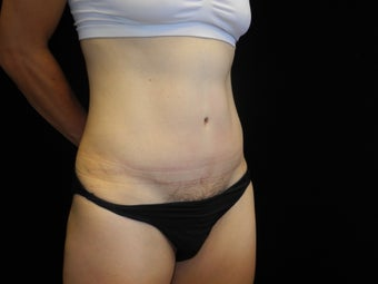 45 year old mother of twins Before and After Abdominoplasty (tummy tuck) after 1273188