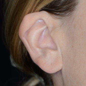 35-44 year old woman treated with Ear Surgery before 3449533