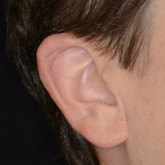 35-44 year old woman treated with Ear Surgery after 3449533