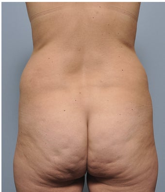 38 Year Old Female Treated For Stomach and Waistline Fat