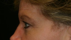 Brow lift followed by an Upper Blepharoplasty before 512712
