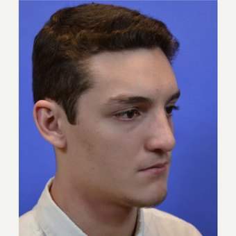 18-24 year old man treated with Rhinoplasty after 3579791