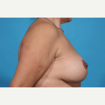 35-44 year old woman treated with Breast Lift with Implants after 3777230