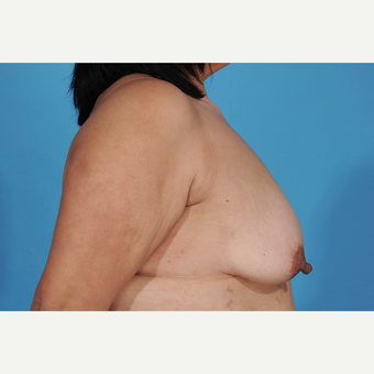 35-44 year old woman treated with Breast Lift with Implants before 3777230